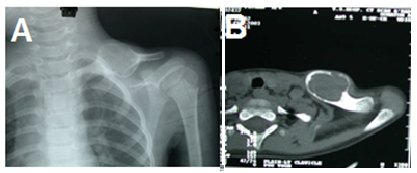 Figure 2. <b> X ray of the left Clavicle showing an expansile mass</b>