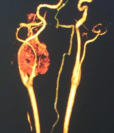 Fig 2. Image of Magnetic Resonance Angiography showing a 3D image of vascular mass at the bifurcation