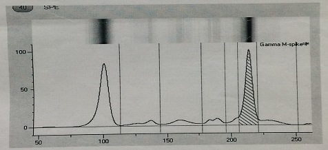 Fig 4. Plasma Protein electrophoresis showing M spike and increased gamma globulin levels.