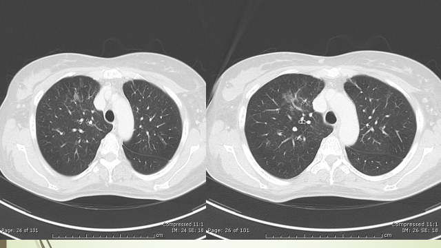 Fig 7. CT chest after 4 cycles of chemotherapy.
