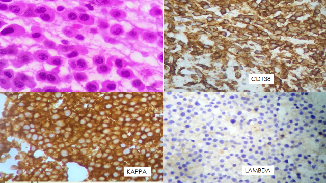 Fig 3. Bone marrow biopsy showing monomorphic plasma cells with occasional binucleated forms.